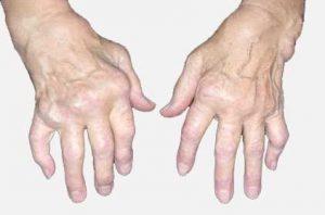 رماتیسم چیست؟ علائم رماتیسم و راه درمان آن