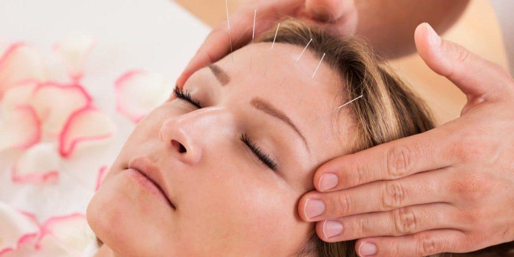 طب سوزنی و کاربردها و مزایای طب سوزنی