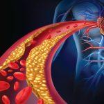 راهکارهایی برای کاهش چربی خون و جلوگیری از بیماری