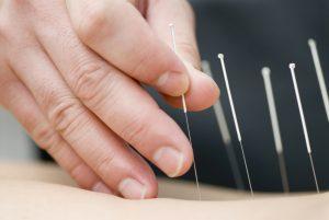 شناخت طب سوزنی؛ طب سوزنی و کاربردها و مزایای این طب سنتی