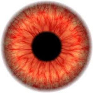 قرمز شدن چشم ها
