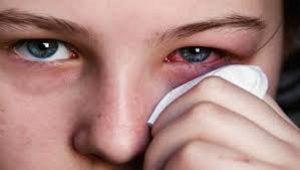 عوامل موثر بر قرمز شدن چشم و روش های کاهش و درمان آن