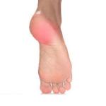 بررسی علل پا درد و راهکارهای کاهش درد