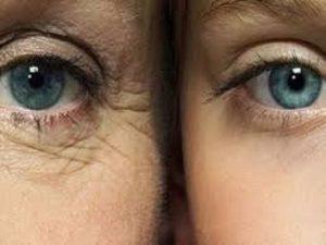 چروک دور چشم خود را چگونه کاهش دهیم و از دست آن خلاص شویم؟