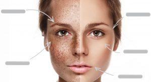 لک های صورت ؛ راه های درمان و راهکارهای طبیعی برای از بین بردن آن ها