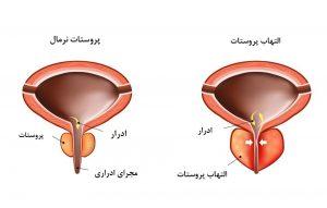 بیماری بزرگی پروستات ؛ علائم بزرگی پروستات و راه های درمان آن