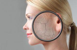علت خشکی پوست چیست؟ انواع پوست خشک و راه های درمان آن