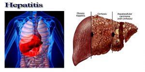 هپاتیت و انواع آن چیست؟ علائم و راه های درمان هپاتیت