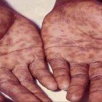 همهچیز در مورد بیماری سفلیس شامل روش تشخیص، علائم و راههای درمان