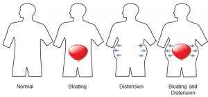 نفخ معده و روده به چه علت به وجود می اید – روشهای پیشگیری و تشخیص