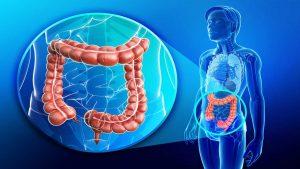 بیماری کولیت روده چیست؟ عوامل ایجاد کننده،علائم این بیماری و راه های درمان