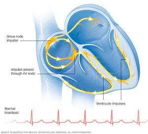 تپش قلب چیست ؟ علایم، نشانه ها و دلایل انواع تپش قلب را بشناسید
