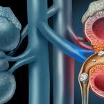 درمان سنگ کلیه و دلایل ایجاد، علایم و راههای پیشگیری را بشناسیم