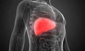 سرطان کبد ؛ بررسی کلیه ی علت های ایجاد کننده این بیماری و علائم آن