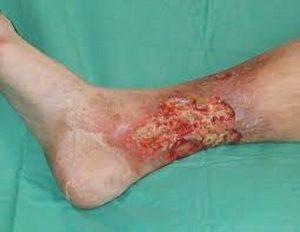 زخم ساق پا چرا و چگونه به وجود می آید؟ بررسی علائم و روش تشخیص آن