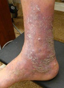 زخم ساق پا