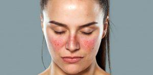 بیماری لوپوس چیست؟ علائم بیماری، عوامل آن و راه های درمان لوپوس