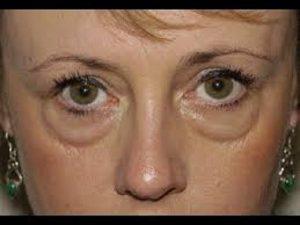 علت ایجاد پف زیر چشم چیست و چه راهکاری برای بهبود آن پیشنهاد می شود؟