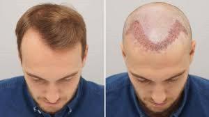 کاشت مو ، روشهای انجام ،خطرات و انتظارات ما از آن