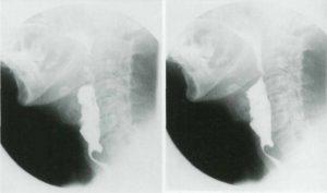 آشالزی چیست؛ تفاوت آشالزی با سرطان مری