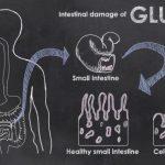 بیماری سلیاک ؛ آیا درمانی برای این بیماری گوارشی وجود دارد؟