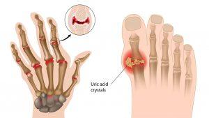 بیماری آرتریت عفونی ؛ علل، علائم و روش های درمانی