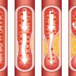 علل گرفتگی رگ قلب چیست و چگونه درمان می شود
