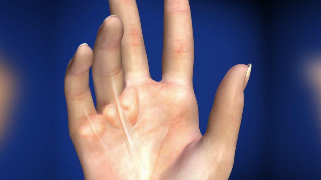 دوپویترن چیست ؟ نشانه ها ، علل و عوامل افزاینده ی خطر این بیماری