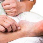 بیماری نقرس یا تورم مفاصل ؛ چه راهکاری برای جلوگیری از این بیماری پیشنهاد می شود؟