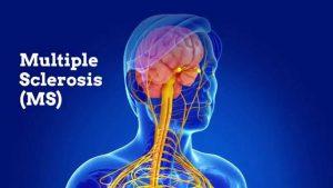 بیماری ام اس ؛ درمان، علل بروز و روش های پیشگیری این عارضه