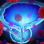 سرطان پروستات ؛ علل،نشانه ها و روش های پیشگیری و درمان این سرطان