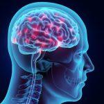 آیا می توان از خون ریزی مغزی جلوگیری کرد؟