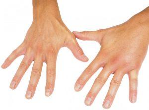 بیماری اسکلرودرما چیست ؟ دانستنی های مهم در رابطه با این بیماری