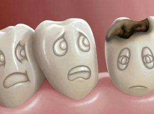 پوسیدگی دندان ؛ برای رفع پوسیدگی دندان هایمان چه کاری انجام دهیم