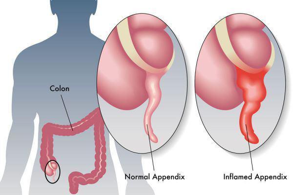 با بیماری آپاندیسیت ، علت ، علایم و درمان گیاهی آن آشنا شوید