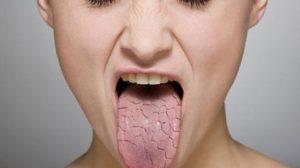 سندرم شوگرن ؛ علل،علائم و روش های درمانی