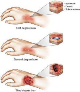 بهترین روش های طبیعی برای درمان سوختگی در انگشتان، صورت و دیگر اندام ها