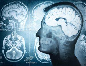 با ۷ مورد از اصلی ترین علائم نشان دهنده ی تومور مغزی آشنا شوید