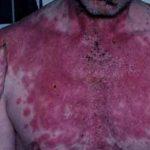 سندرم استیون جانسون چیست؟ درمان، علل و علائم