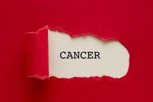 روش های پیشگیری از سرطان