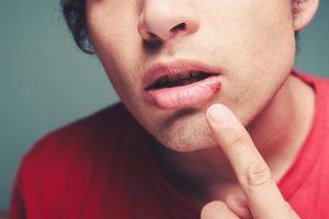 استوماتیت (stomatitis) چیست؟ روش های درمانی و علل به وجود آورنده این بیماری دهانی