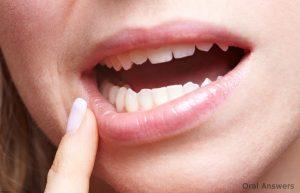 هفت روش موثر خانگی جهت بهبود و کاهش درد دندان عقل