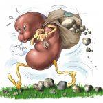 سنگ کلیه ؛ روش های درمان خانگی این بیماری چگونه است؟