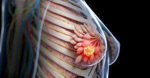 چگونه با ید از سرطان سینه پیشگیری کنیم