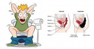 درمان یبوست/ همه ی درمان های یبوست را اینجا بخوانید.