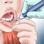 آفت دهان و زبان علت، علائم و درمان آن را بدانید.