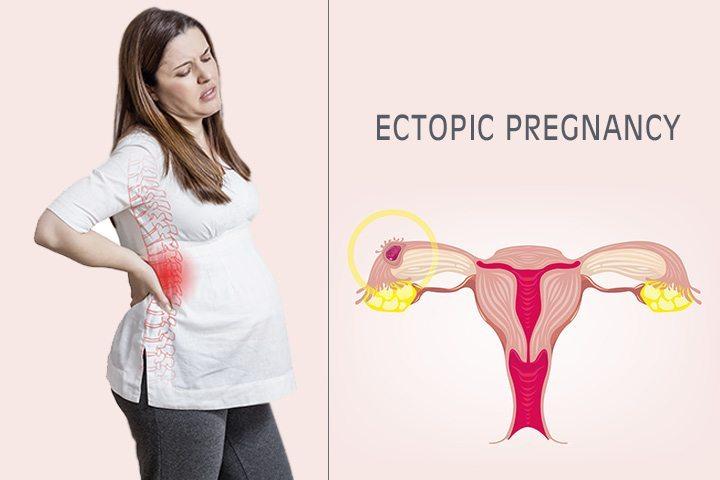 حاملگی خارج رحمی