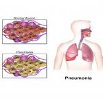پنومونی / پنومونی چیست، چه علائمی دارد و چگونه درمان می شود؟