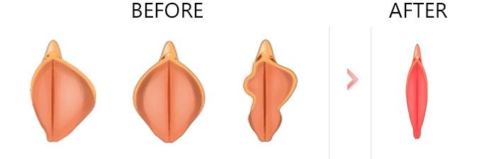 جراحی لابیا پلاستی