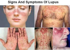 بیماری لوپوسچیست ؟ آشنایی با عوامل بروز لوپوس و درمان آن